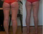 Endlich cellulitefrei: Mein Kampf für straffe Beine!